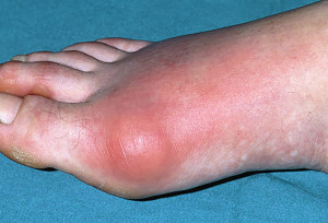 Gout is a very painful form of arthritis.  It usually starts off in just one joint, usually a big toe, an ankle or a knee.